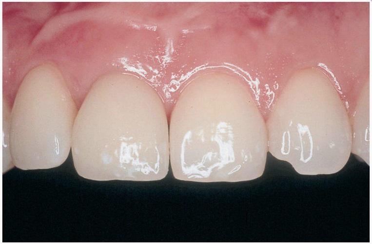 Имплантация переднего зуба, после