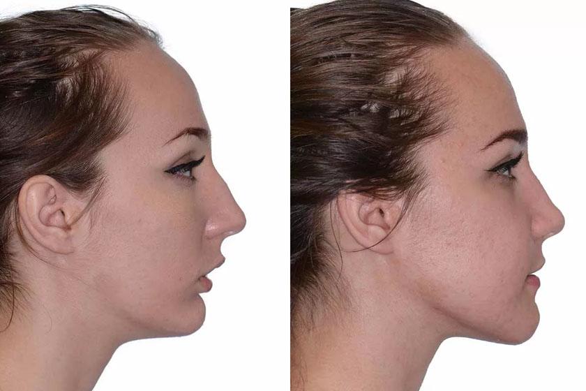 Продолжительность лечения и фото результата