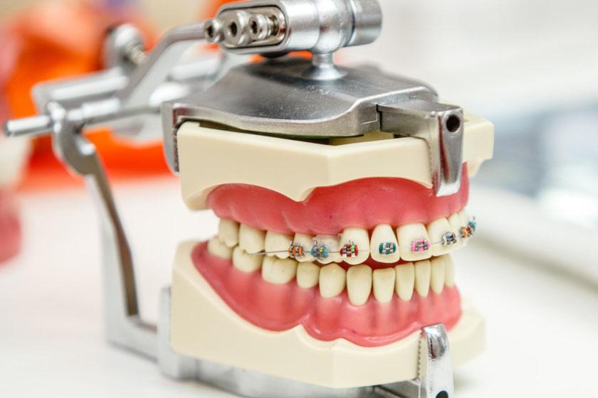 Особенности работы ортодонта
