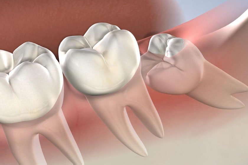 Показания к удалению зубов мудрости при брекетах у подростков