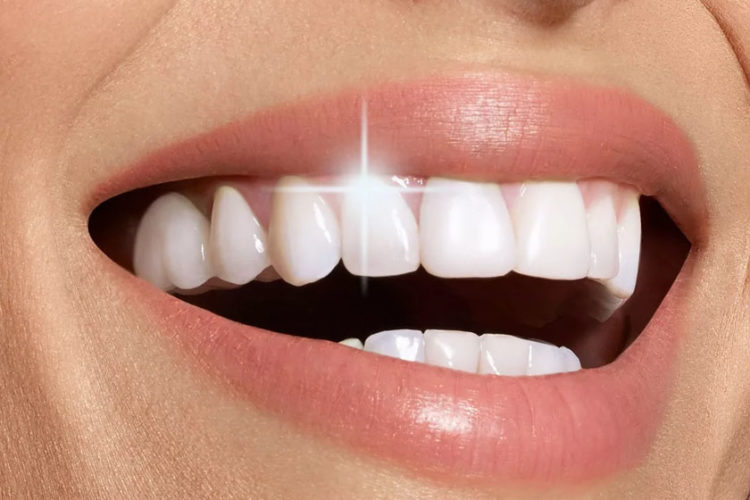 Что такое отбеливание зубов