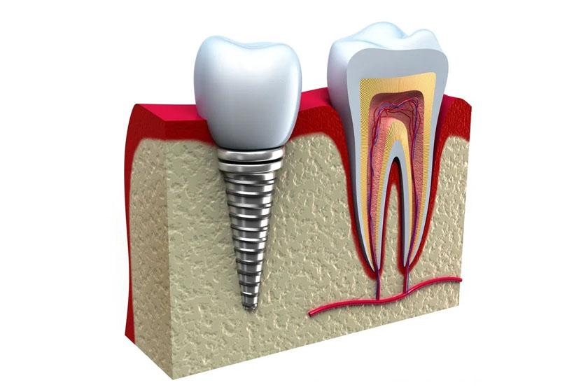 Имплантация зубов без боли