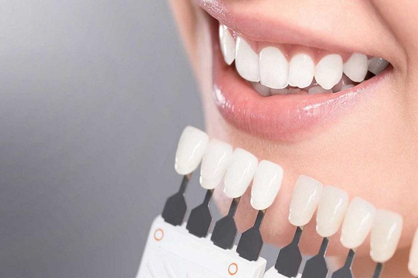 Какой способ отбеливания зубов самый безопасный и эффективный