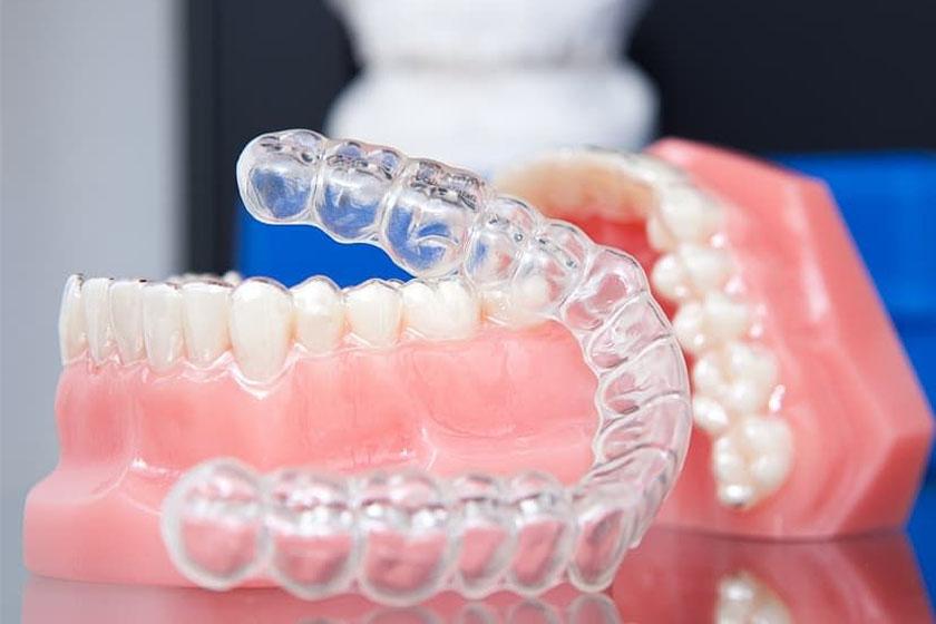 Противопоказания к выравниванию зубов элайнерами