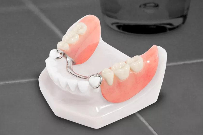 Реабилитация после протезирования зубов