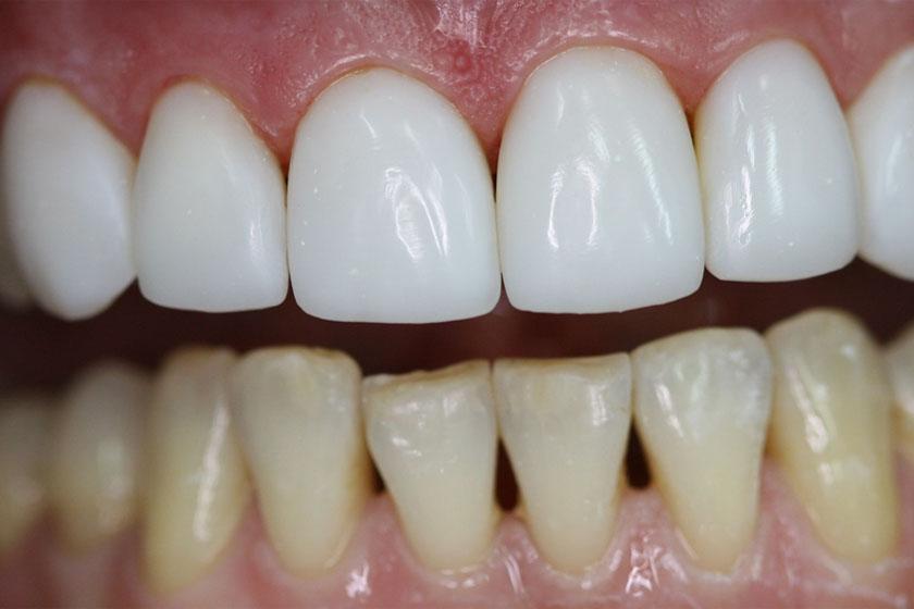 С какого возраста разрешена художественная реставрация передних зубов