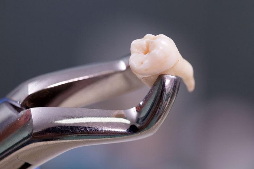 Сколько зубов можно удалять одновременно