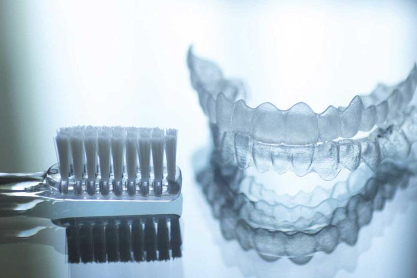 Восстановление после выравнивания зубов элайнерами