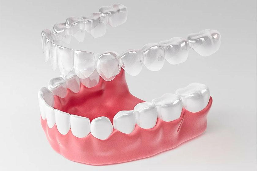 Выравнивание зубов элайнерами без боли