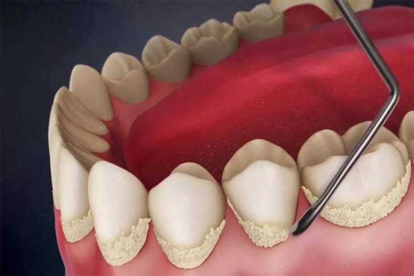 Зачем удалять зубные камни