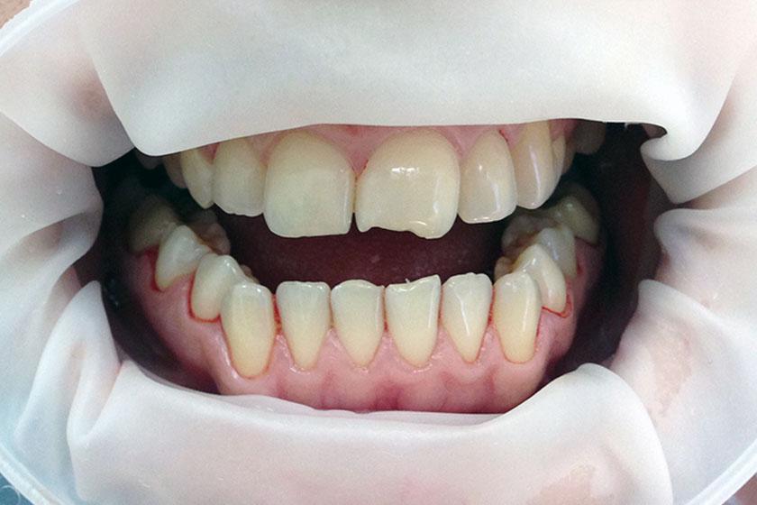 А можно нарастить передний зуб