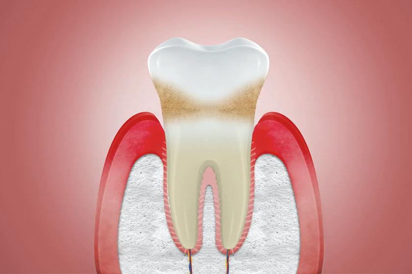 Что делать, если зуб зарос десной