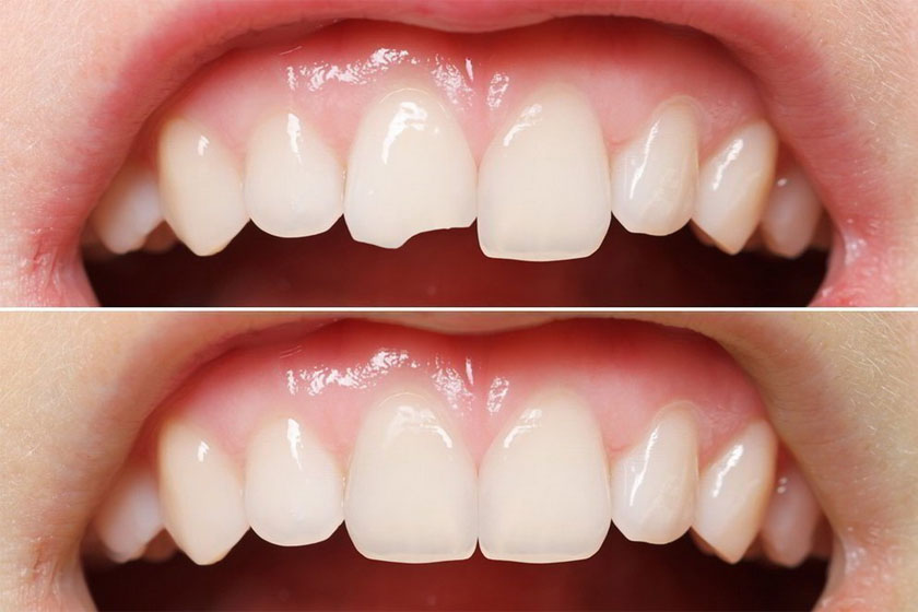 Как можно восстановить разрушенный зуб, если корень сохранился