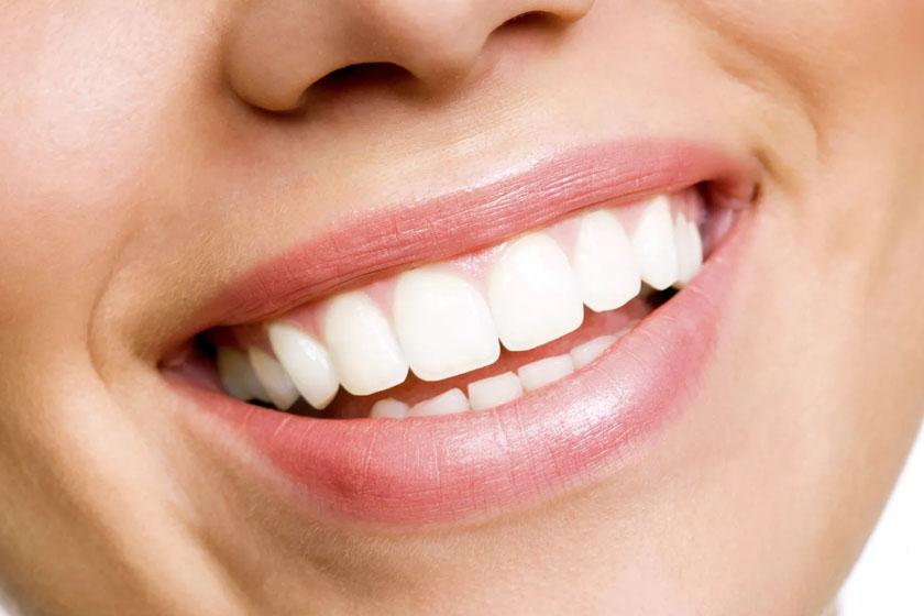 Как сделать зубы ровными