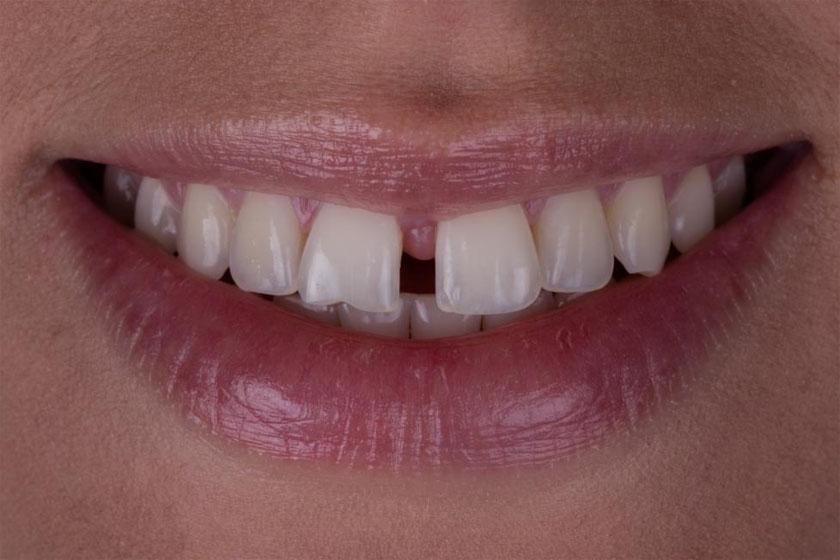 Как убрать щели между зубов