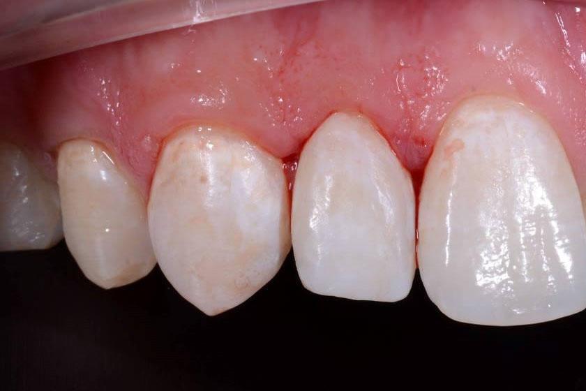 Как вылечить ушиб зуба
