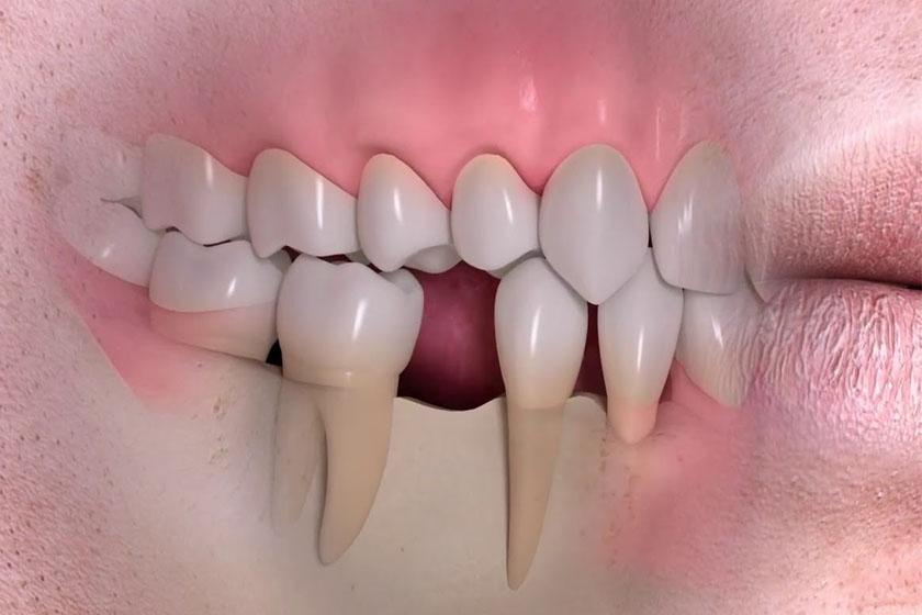 Чем грозит длительное отсутствие зуба