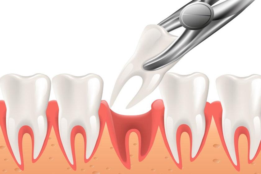 Что делать если посинела десна после удаления зуба