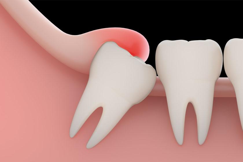 Что делать если зуб зарос десной
