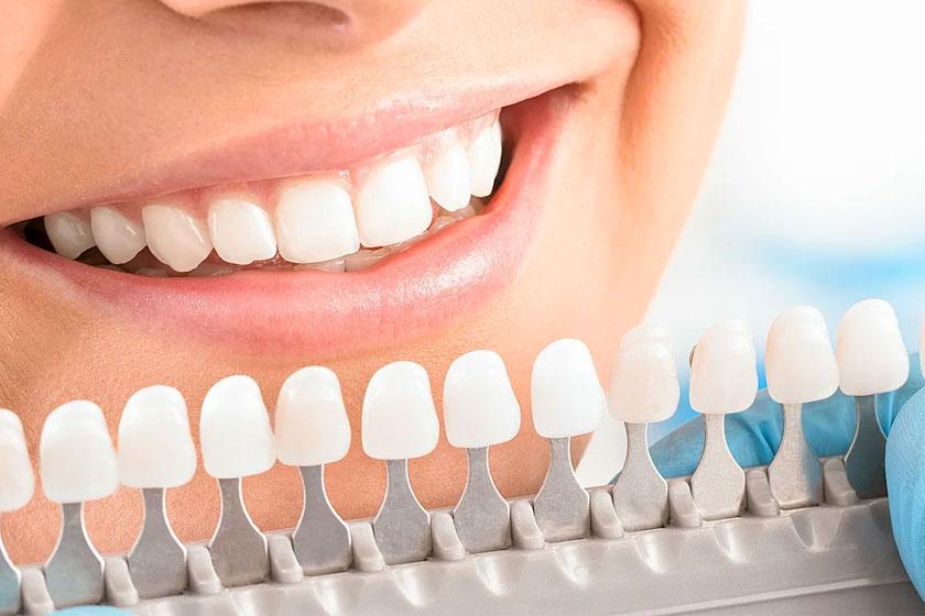 Как сделать зубы белее
