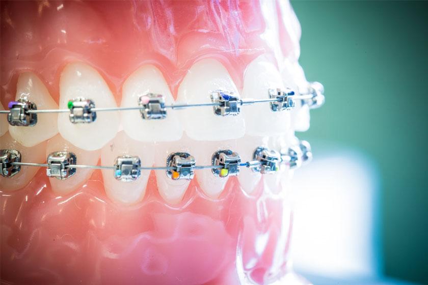 На какие зубы ставят брекеты