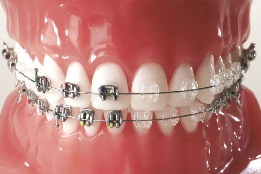 Брекеты не смыкаются зубы