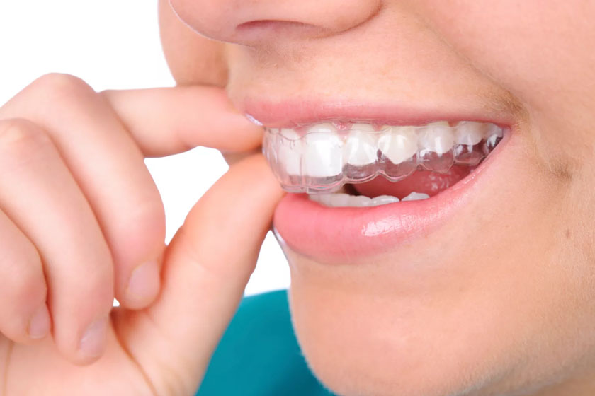 Исправление кривых зубов без брекетов