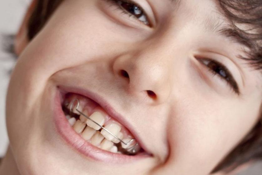Как брекеты выпрямляют зубы