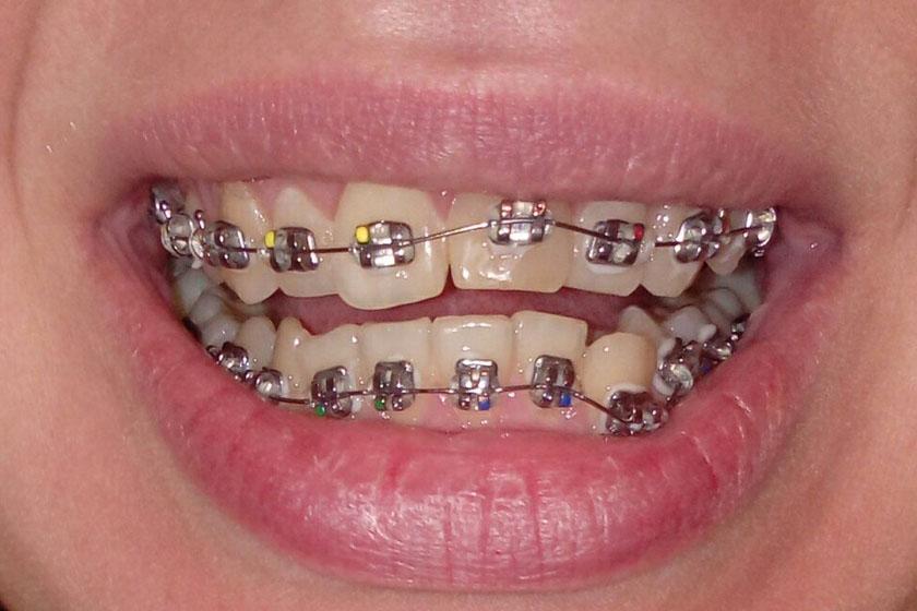 Расположение брекетов на зубах