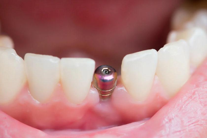 Болит десна после имплантации зуба
