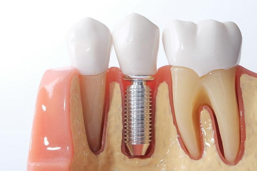 Имплантация зубов под ключ как происходит