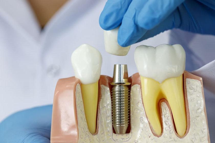 Имплантация зубов при диабете