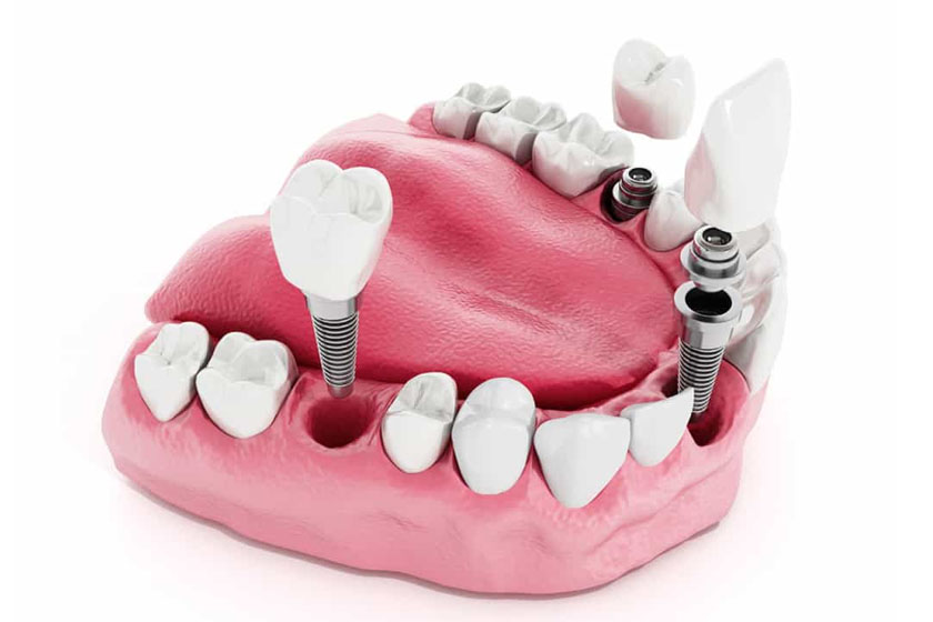Когда можно есть после имплантации зуба