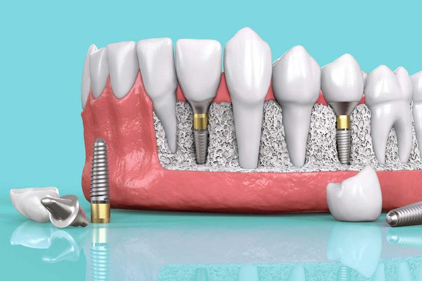 Кровит десна после имплантации зуба