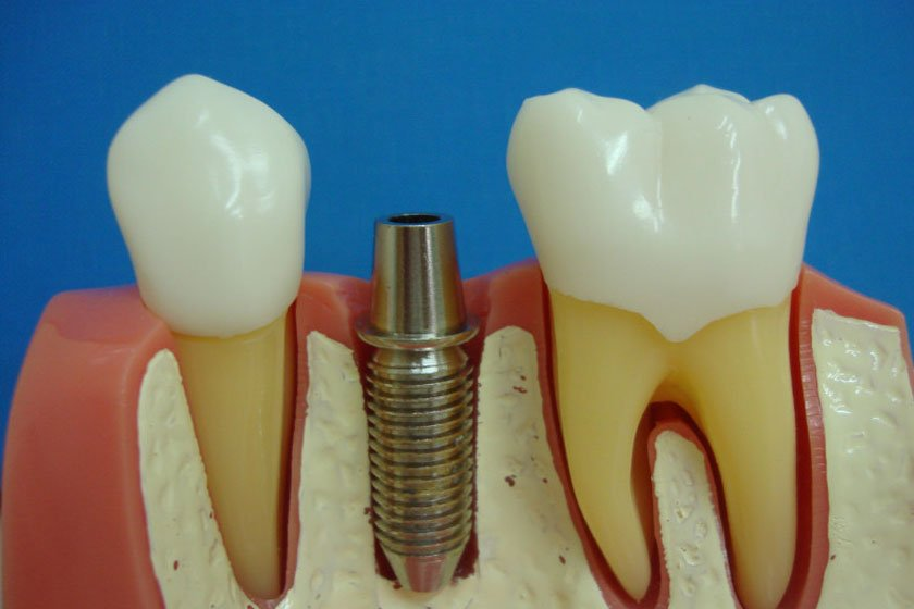 Можно ли гулять после имплантации зубов