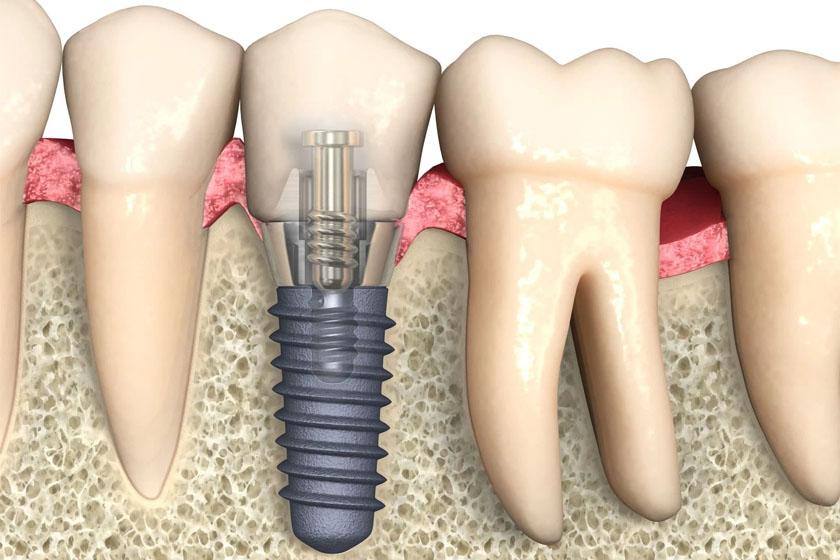 Нужно ли пить антибиотики после имплантации зубов