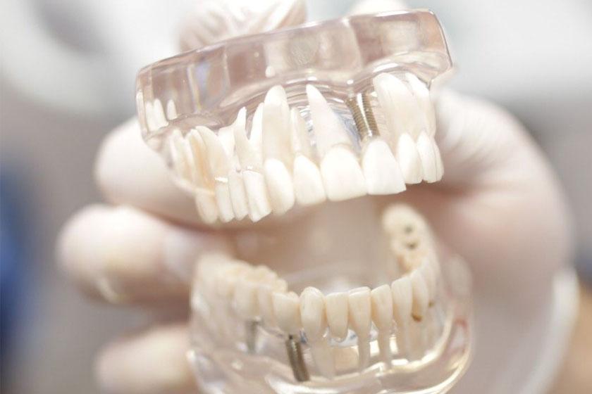 Протезирование зубов без имплантации