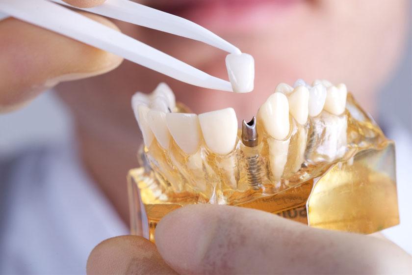 Состояние после имплантации зубов