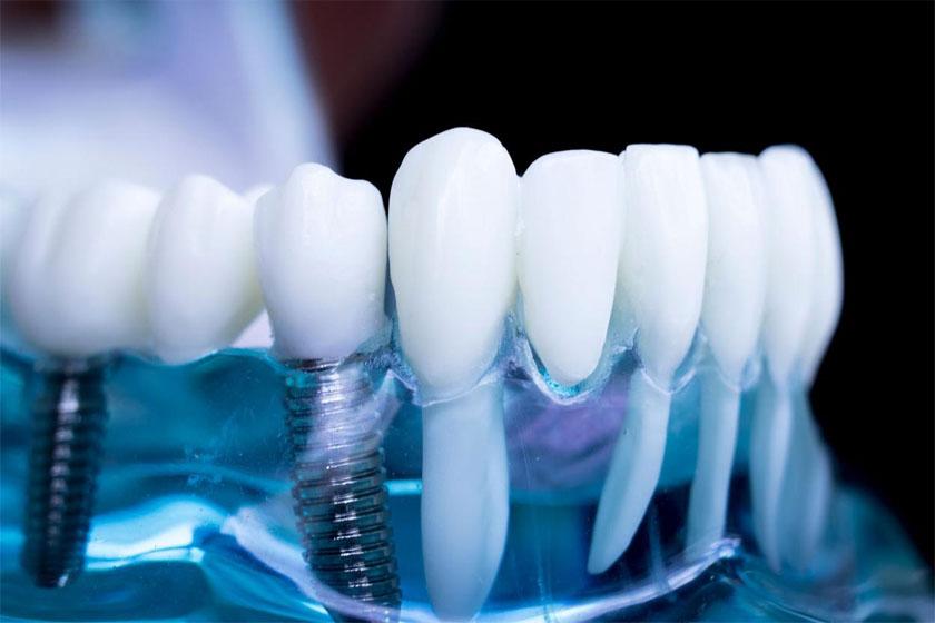Время имплантации зуба