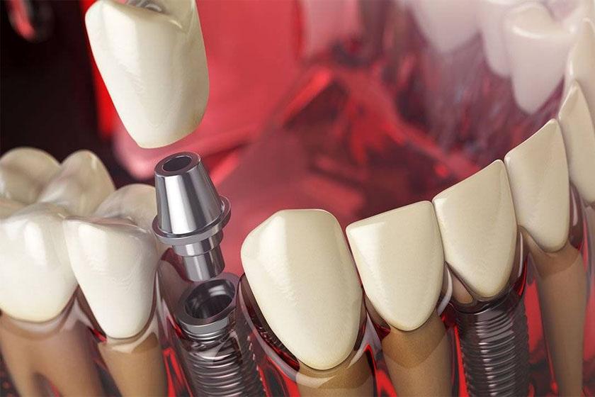 Что нельзя делать перед имплантацией зубов