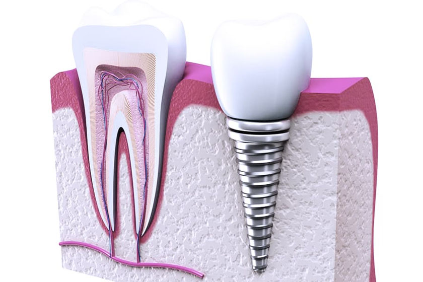 Имплантация зубов и беременность