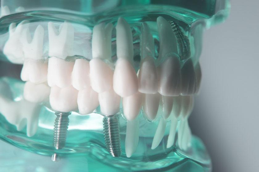 Имплантация зубов корейские импланты