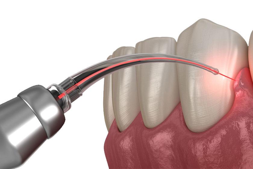 Имплантация зубов лазером