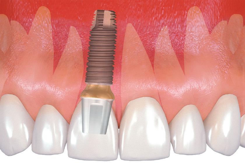 Имплантация зубов последствия