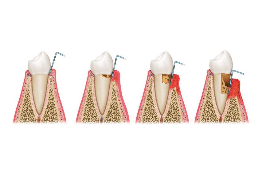 Имплантация зубов при пародонтите