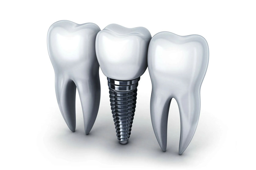 Классическая имплантация зубов