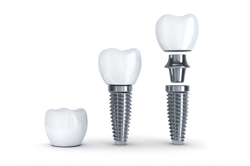 Минусы имплантации зубов