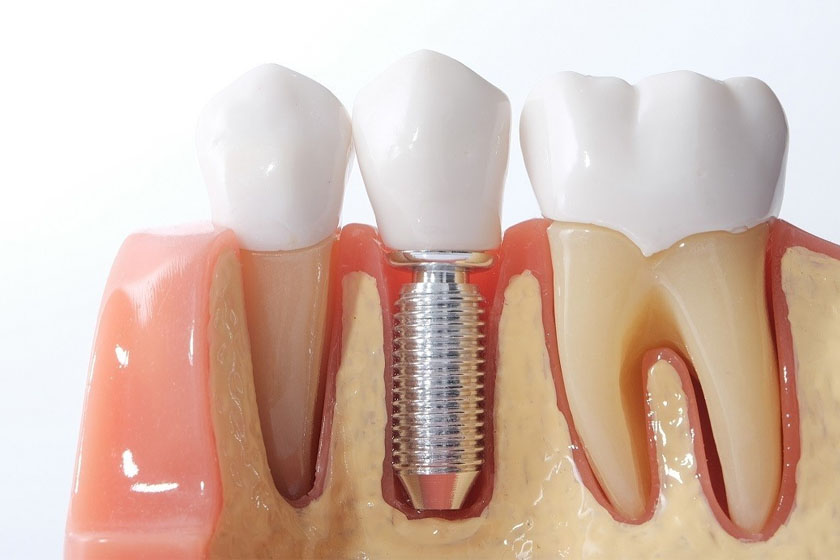 Одномоментная имплантация зубов плюсы и минусы