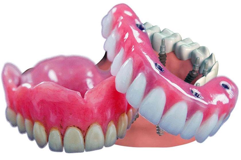 Противопоказания для имплантации зубов перечень заболеваний