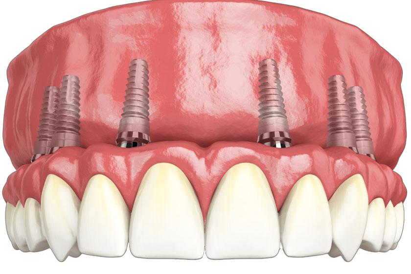 Что нужно знать перед имплантацией зубов